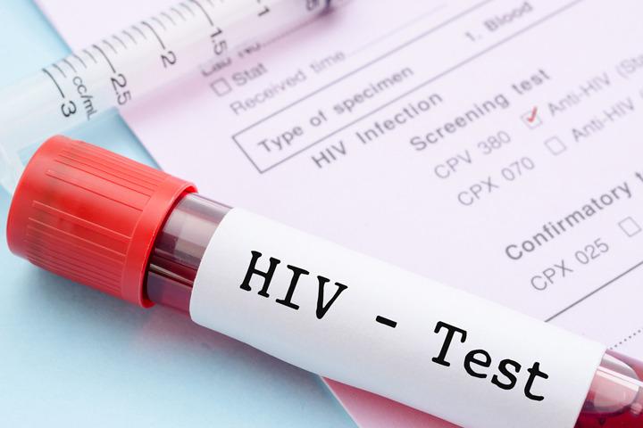 Una bambina sudafricana sconfigge l'Hiv, terzo caso al mondo