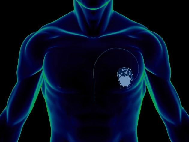 Pacemaker e defibrillatori difettosi Asl in allerta: negli Usa già due morti