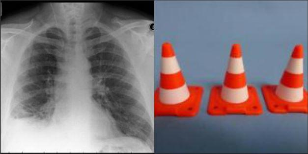 Teme un cancro ai polmoni, ma è solo un giocattolo